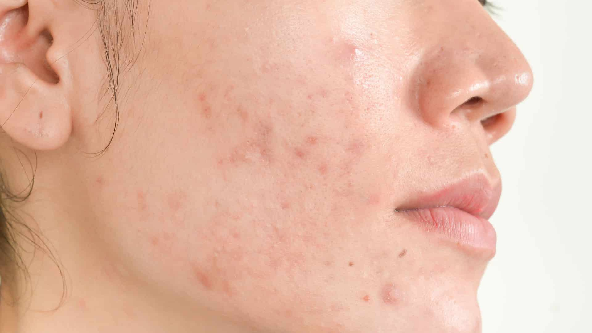 acupuntura estética para acne