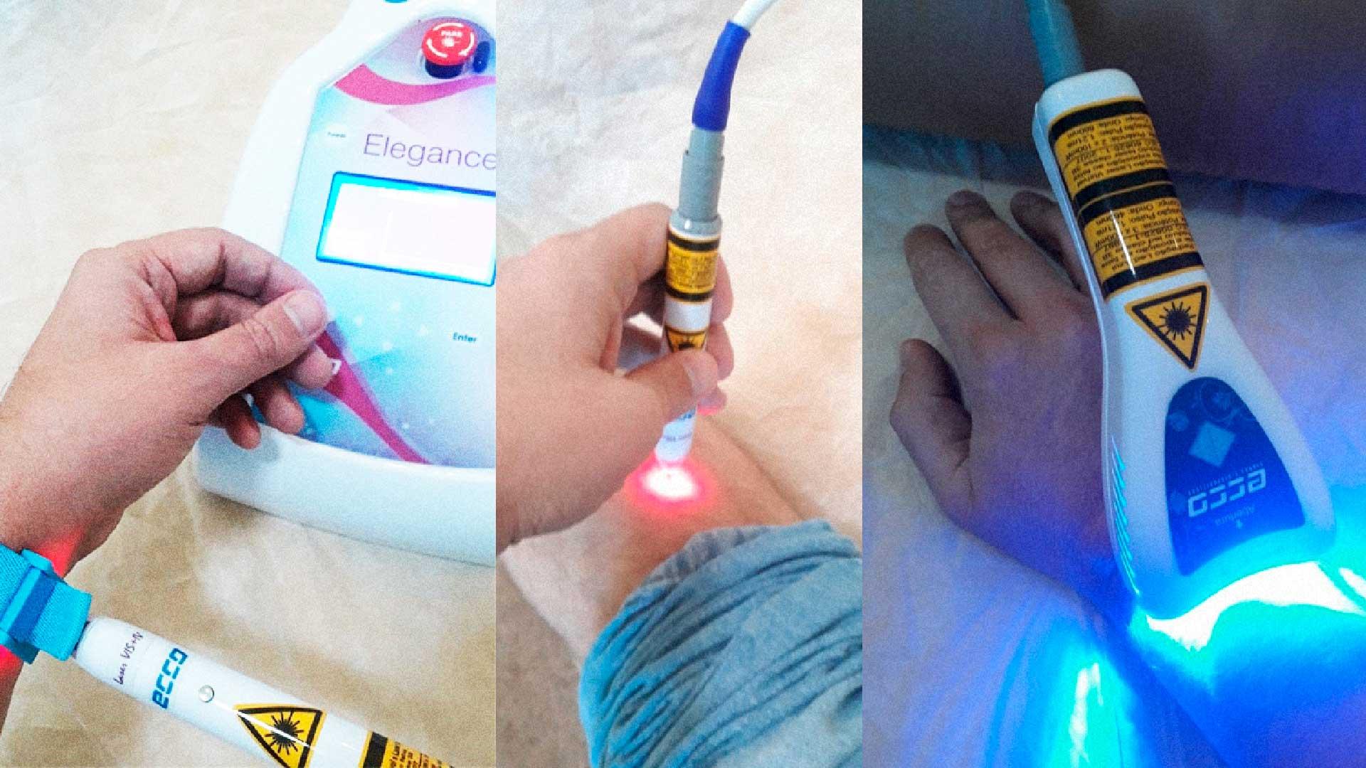 acupuntura a laser curitiba