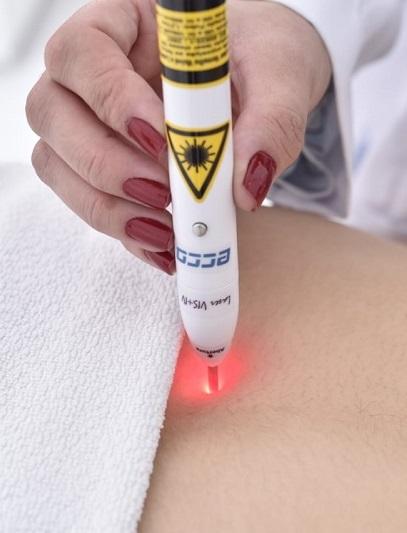 acupuntura a laser aparelho