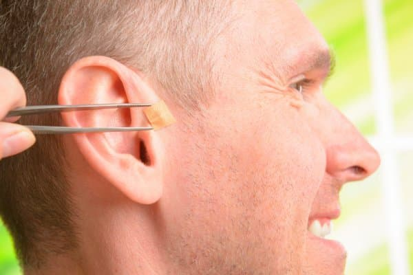 acupuntura auricular curitiba