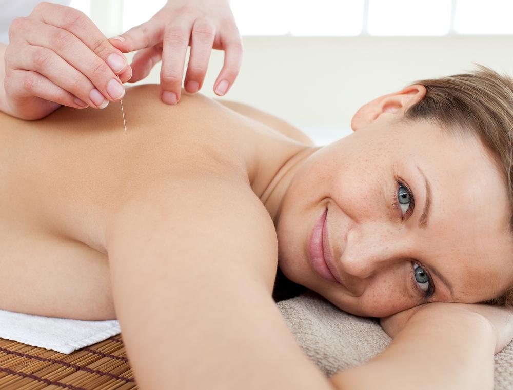 acupuntura para ansiedade 3