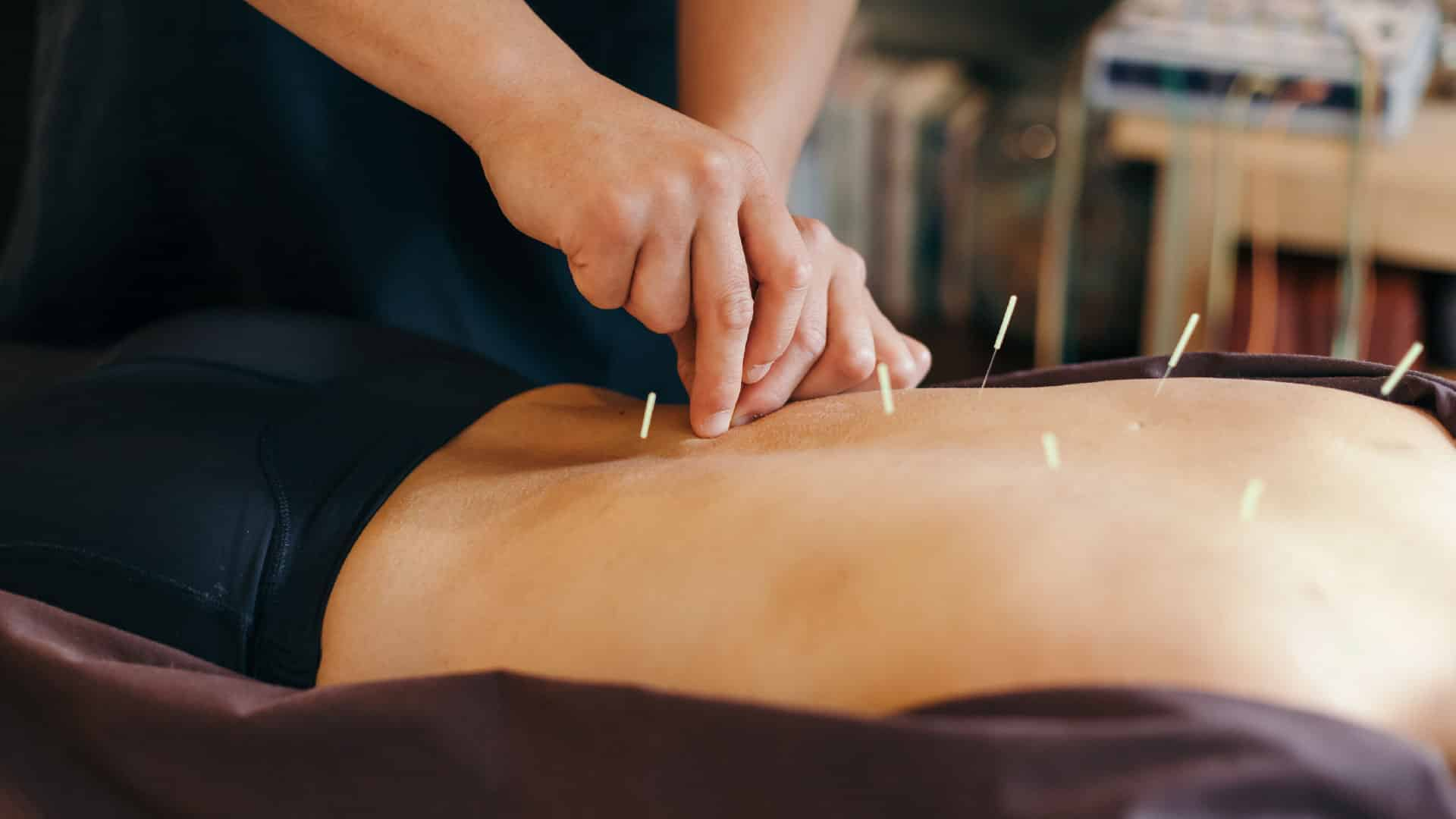 acupuntura sistêmica