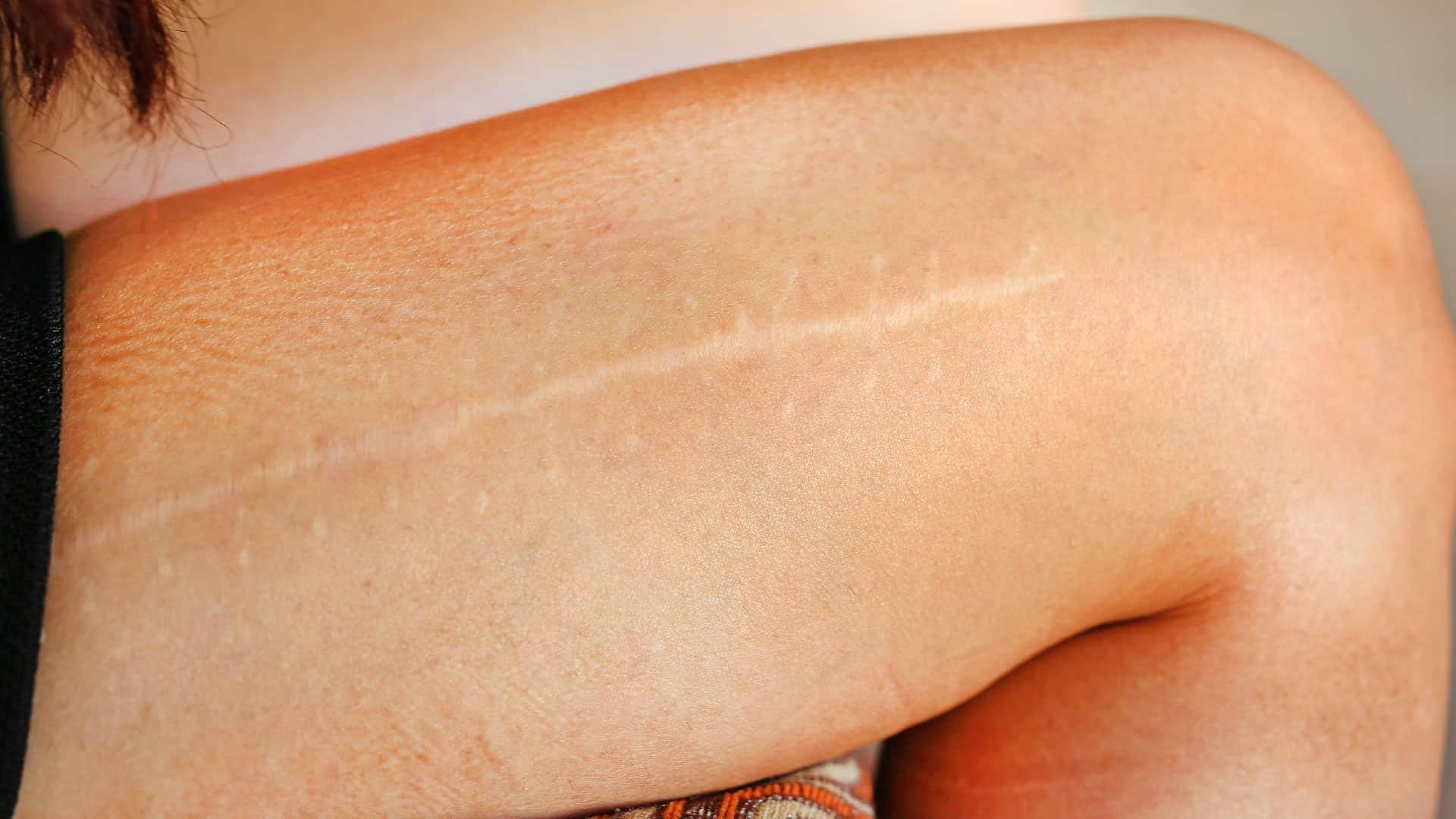 acupuntura estética para cicatrizes