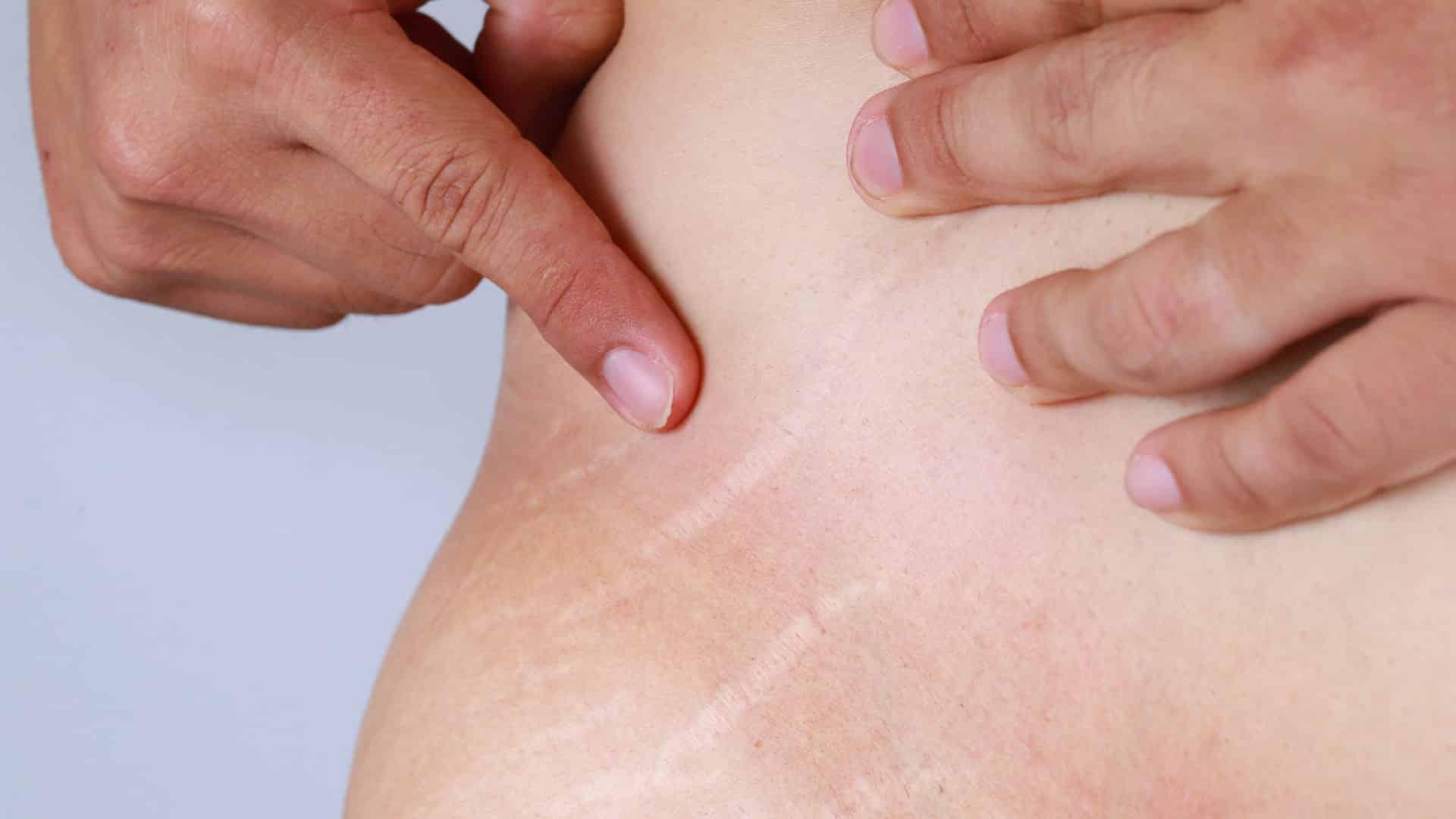 acupuntura estética para estrias